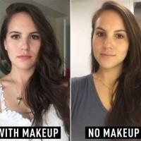 Not Wearing Makeup Acne Makeupview Co